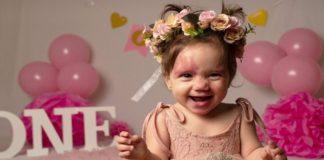 Девочка родилась с родимыми пятнами на лице