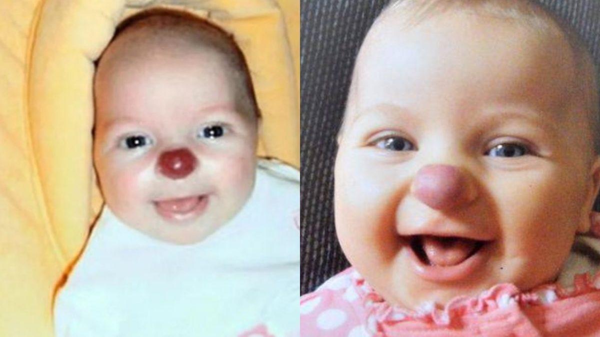 Как изменилась девочка, которая родилась с носом клоуна? (ФОТО)   Одна  Минута