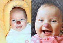 Дівчинка народилася з клоунським носом