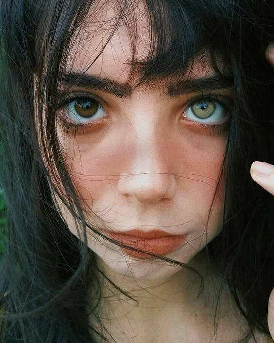 Девушка с разным цветом глаз