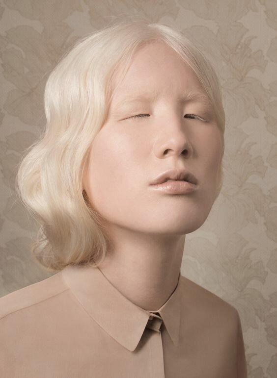 Удивительные альбиносы