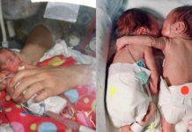Медсестра врятувала близнючку