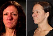 Пластична операція кардинально змінила зовнішність жінки