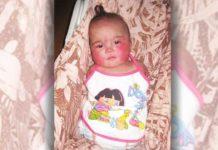Дівчинка народилася без рук і ніг