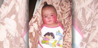 Девочка родилась без рук и ног