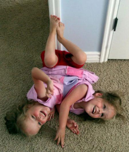 Сестры сиамские близнецы