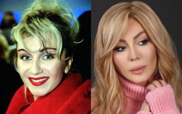 Ирина Билык: до и после