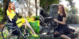Женщина с инвалидностью стала моделью