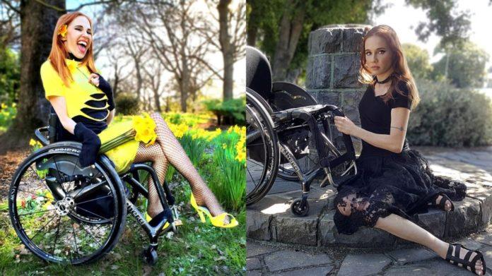 Жінка з інвалідністю стала моделлю