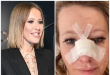 Ксенія Собчак госпіталізована зі зламаним носом