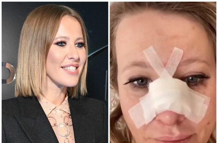 Ксения Собчак госпитализирована со сломанным носом