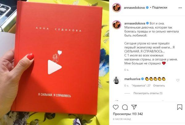 Обложка книги Анны Седоковой. Фото: Instagram Седоковой