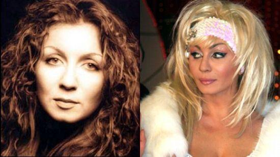 Ирина Билык: до и после пластики