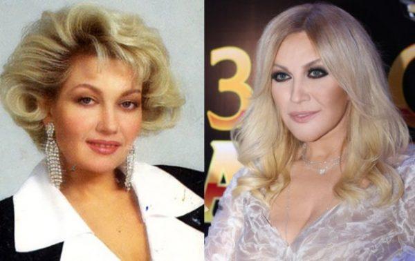 Таисия Повалий: до и после пластики
