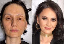С макияжем даже шрамов не видно
