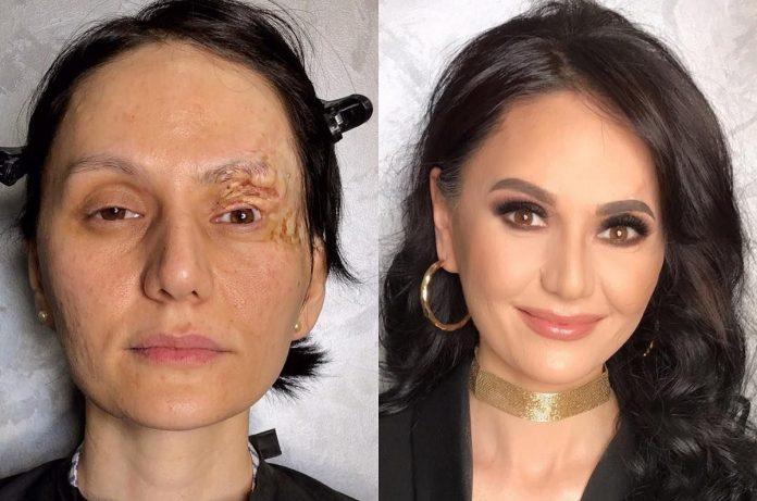 З макіяжем навіть шрамів не видно