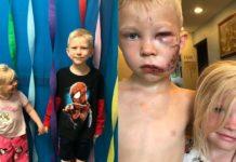 6-річний брат закрив собою сестру від собаки, яка на неї напала