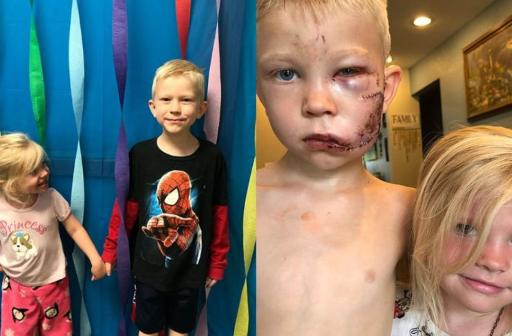 6-летний брат закрыл собой сестру от собаки, которая на нее напала
