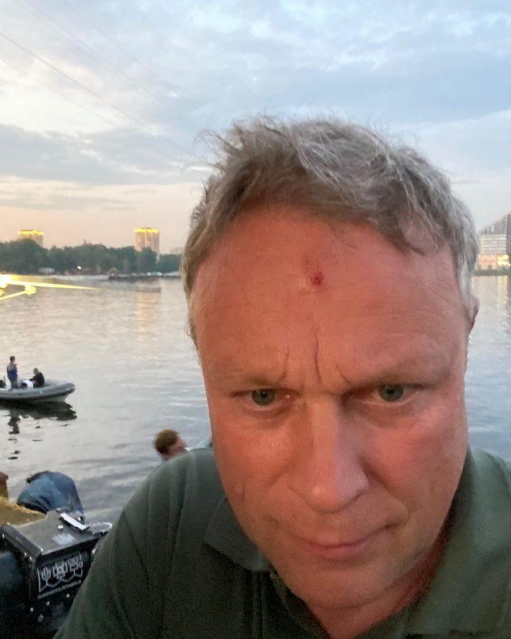 поранений Сергій Жигунов