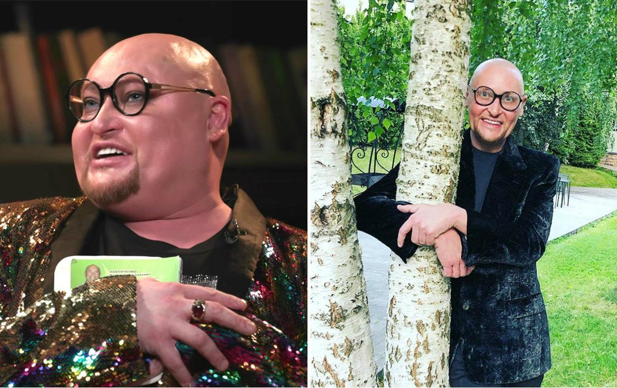 шура певец похудел фото до и после