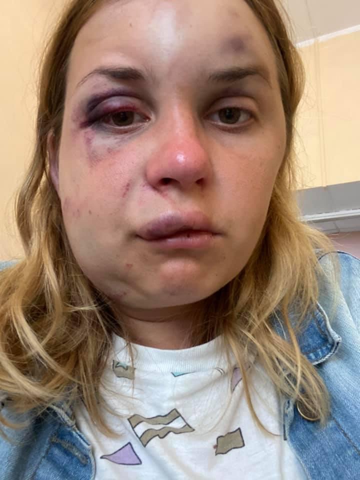 Анастасия Луговая после происшествия