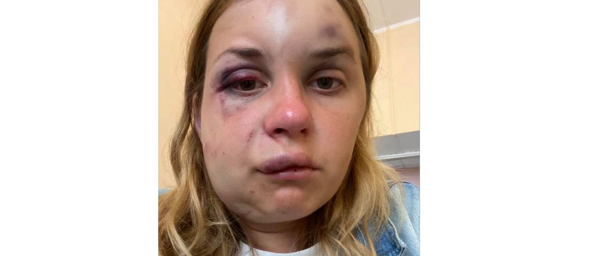 Украинскую телеведущую Анастасию Луговую в поезде на глазах сына избили и пытались изнасиловать – женщина в травматологии