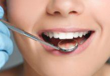 Як відновити зубну емаль