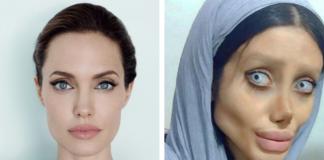 Дівчина зробила 50 операцій, щоб бути схожою на Анджеліну Джолі