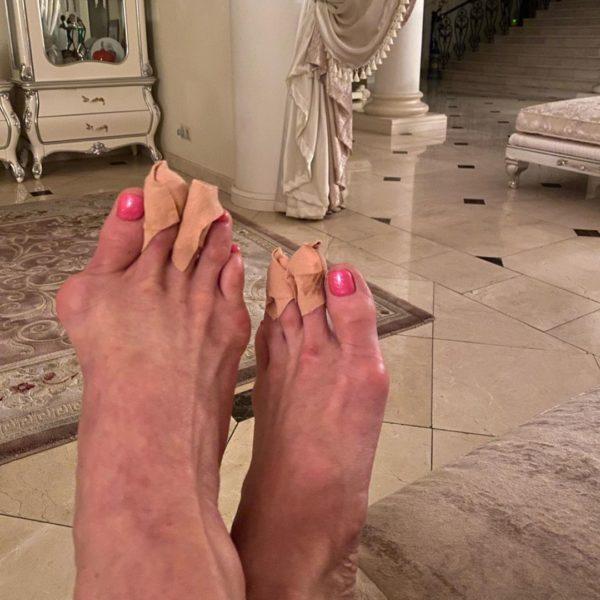Покалічені ноги Волочкової