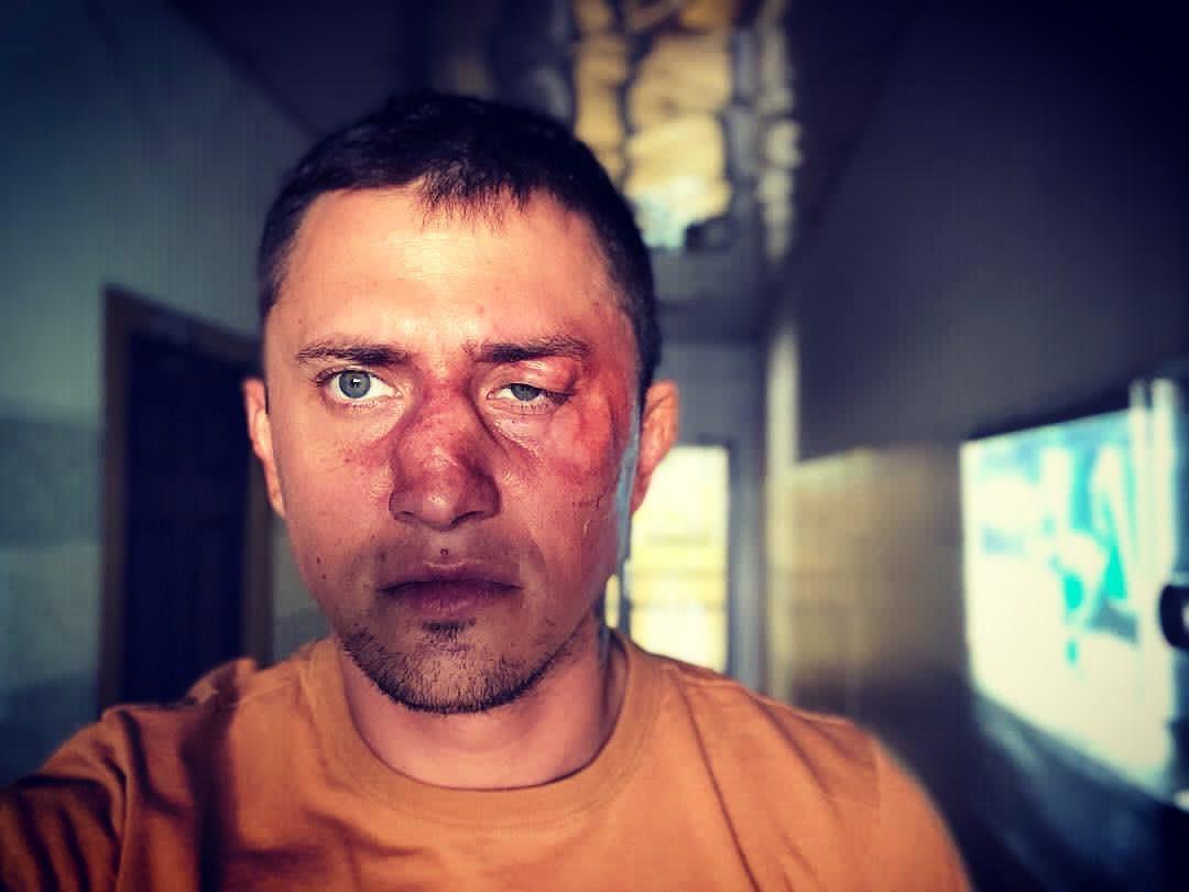 Павло Прилучний після бійки