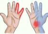 С чем связано онемение рук