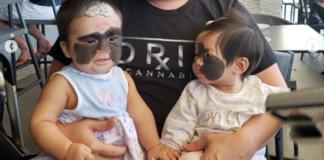 Детки с невусом