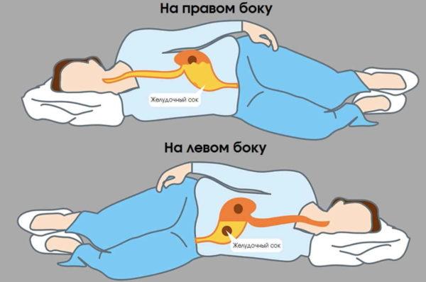 На правом боку спать опаснее