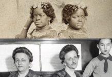 Сіамські близнюки - три дивовижних історії