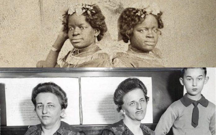 Сиамские близнецы - три удивительных истории