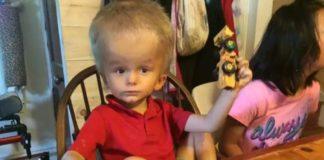 Трогательная история про мальчика с большой головой - от него отказались свои родители, но приняли чужие