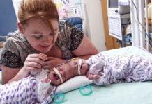 Сиамским близнецам сделали сложную, но удачную операцию