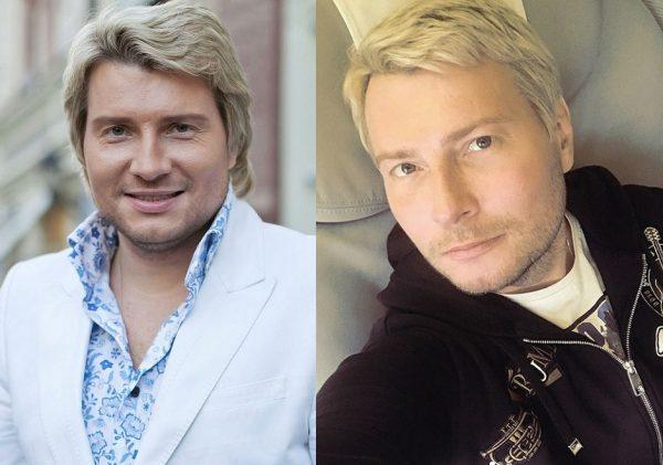 Микола Басков до і після пластики