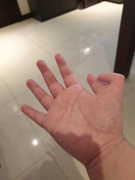 Дополнительный палец