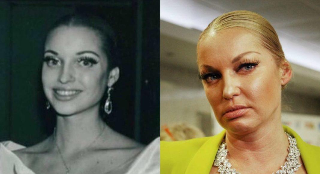 Анастасия Волочкова в молодости и сейчас