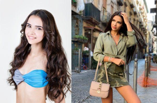 Яна Орфеева до и после операции