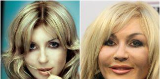 Ірина Білик до і після пластики
