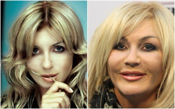 Ирина Билык до и после пластики