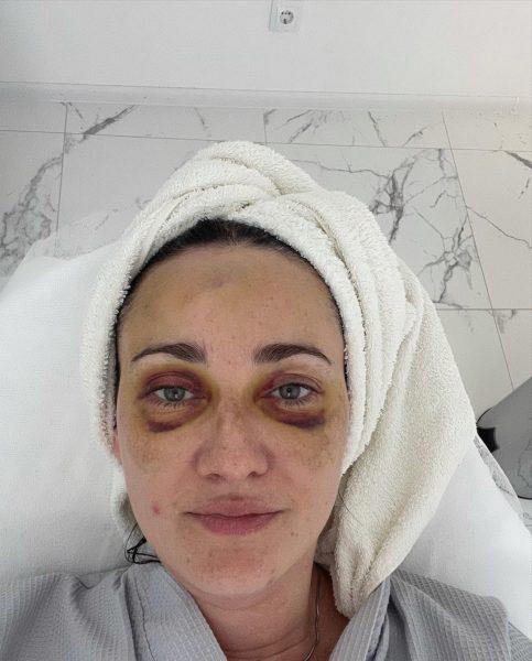 Соломія Вітвіцька показала обличчя після ДТП