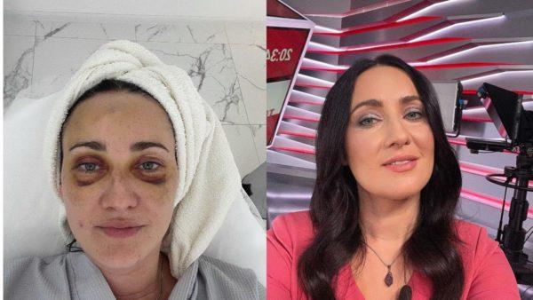 Соломія Вітвіцька покзал, як фото до і після макіяжу